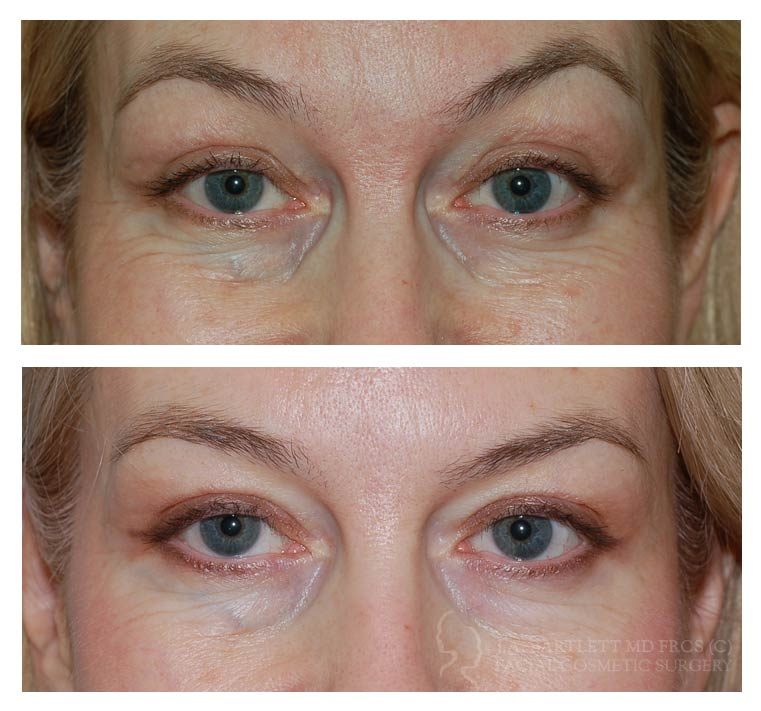 Botox Injections Before And After | Facial Cosmetic Surgery | Vancouver