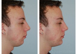 Chin Implant Before And after | Facial Cosmetic Surgery