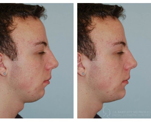 Chin Implant | Double Chin Surgery | Plastic Surgery | Vancouver
