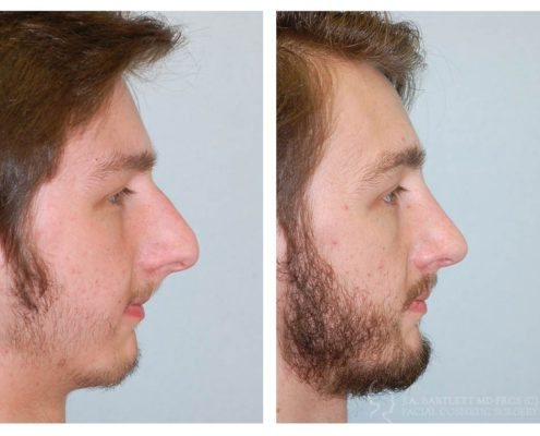 Plastic Surgery For Men Cosmetic Surgery For Men Vancouver