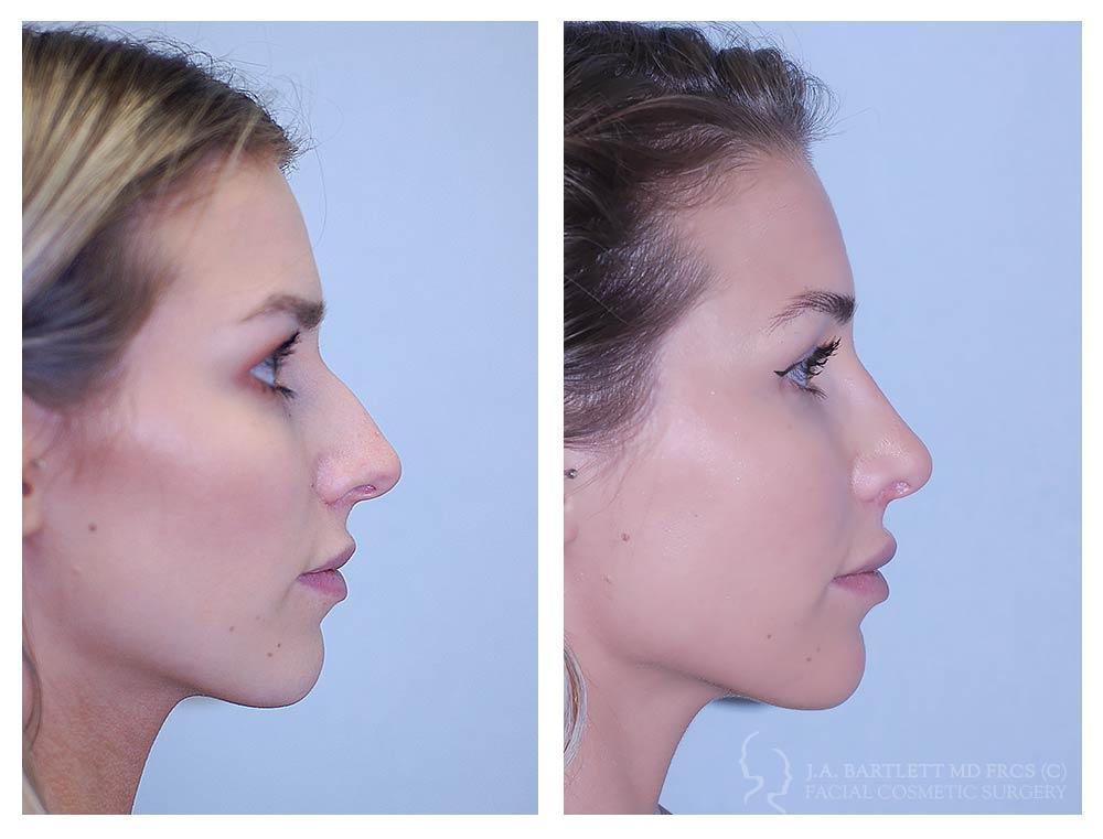 boulder-facial-surgery