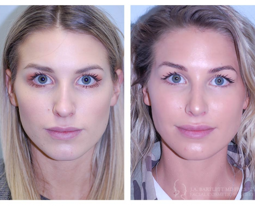 Rhinoplasty Nose Job Before And After Cosmetic Surgery Vancouver